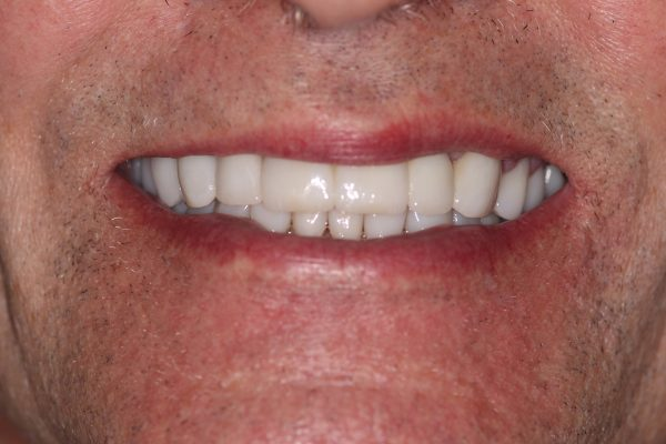 Full Mouth Rehabilitation Bermuda Dunes, California