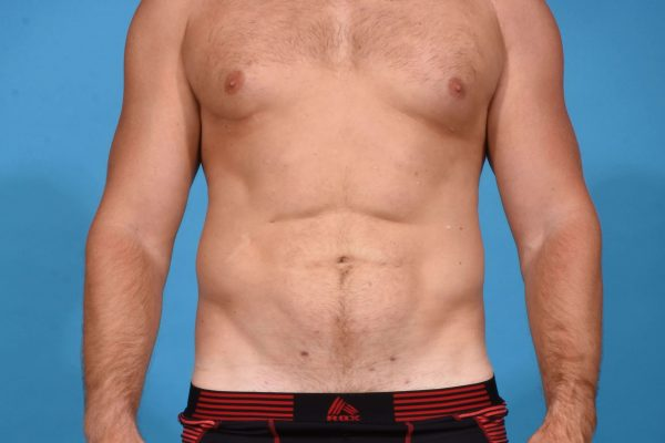 Abdominal Etching  with High Definition Liposculpting
