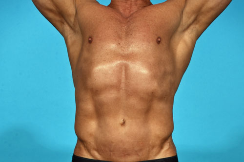 Abdominal Etching with high definition Liposculpting.