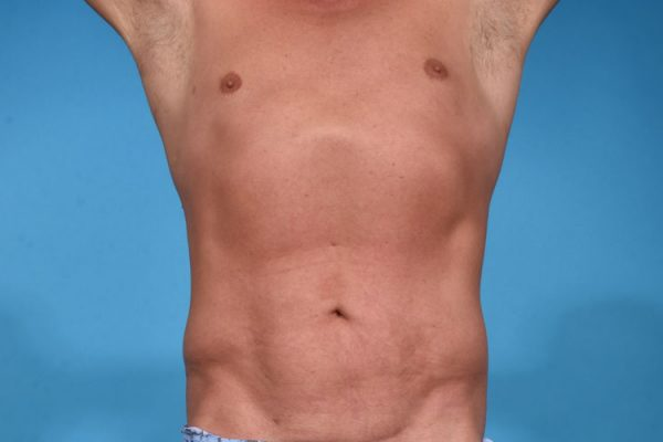 Hi-definition VASER Lipocontouring and Liposculpting