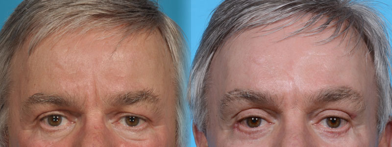 Forehead and Brow Lift Plus Eyelid Lift