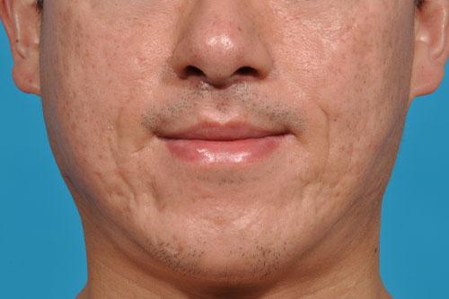 Upper Lip Lift