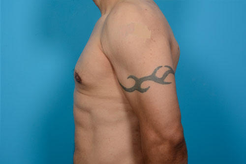 Gynecomastia Excision Plus Hi-Definition VASER Liposculpture