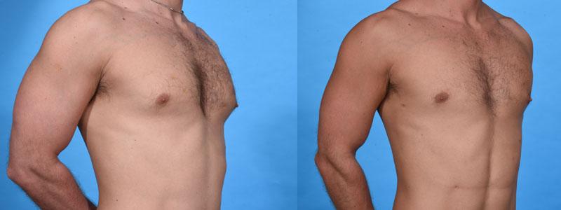 Gynecomastia Plus VASER Liposculpting and Lipocontouring