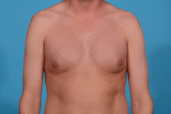 Chest Contouring with Pectoral Augmentation in Dallas, Texas