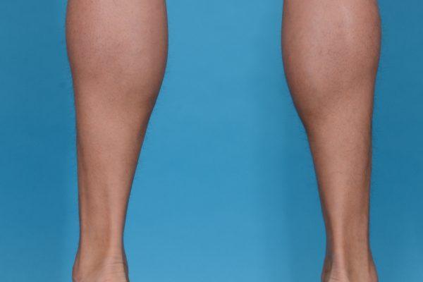 Calf Augmentation With Double Calf Implants in Dallas, Texas