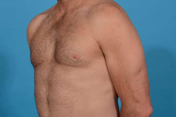 Chest Contouring with Abdominal Etching in Dallas, Texas