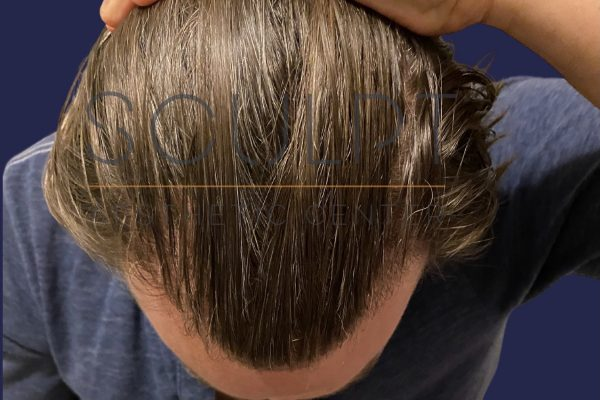 Hair Restoration in Dallas, Texas