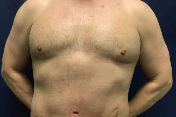 360 Body Lift with Gynecomastia Excision