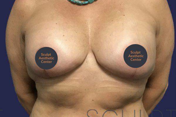 Mastopexy with Breast Implant Exchange