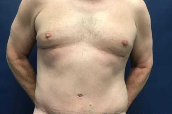 Core Physique SCULPTing with Male Tummy Tuck