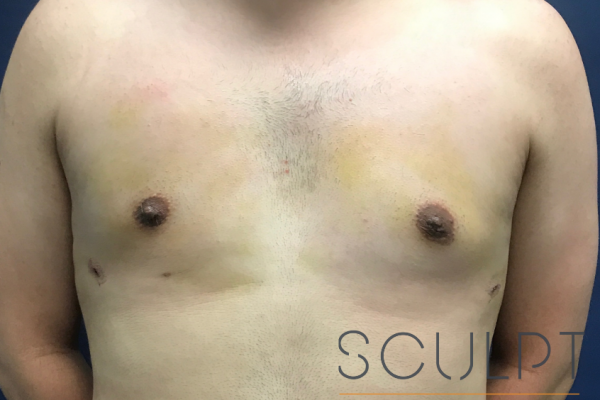 Gynecomastia Excision with Chest SCULPTing