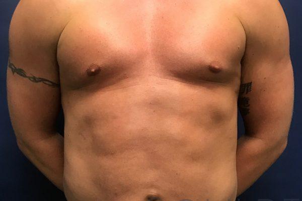Liposuction to the Abdomen, Chest, Keller, TX