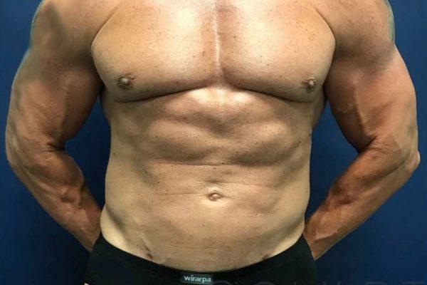 Liposuction to the Abdomen, McKinney, TX