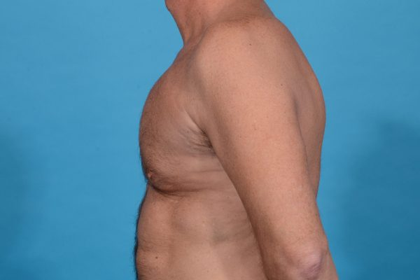Central Physique Etching with Pectoral Augmentation in Dallas, TX