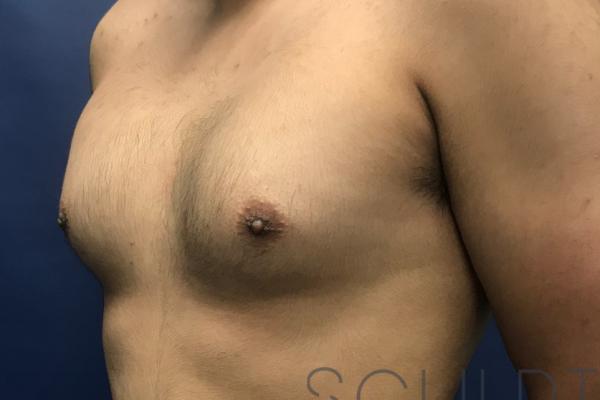Gynecomastia Excision with Chest SCULPTing, Dallas, TX