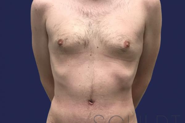Male Tummy Tuck, Dallas, TX