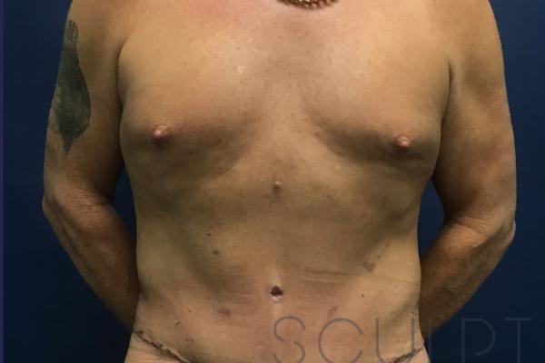 Liposuction to the Abdomen, Chest, Back, Arlington, TX